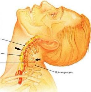 Шейный остеохондроз лечение заболевания народными средствами